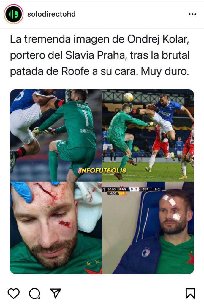 Le cure al portiere durante Rangers-Slavia Praga